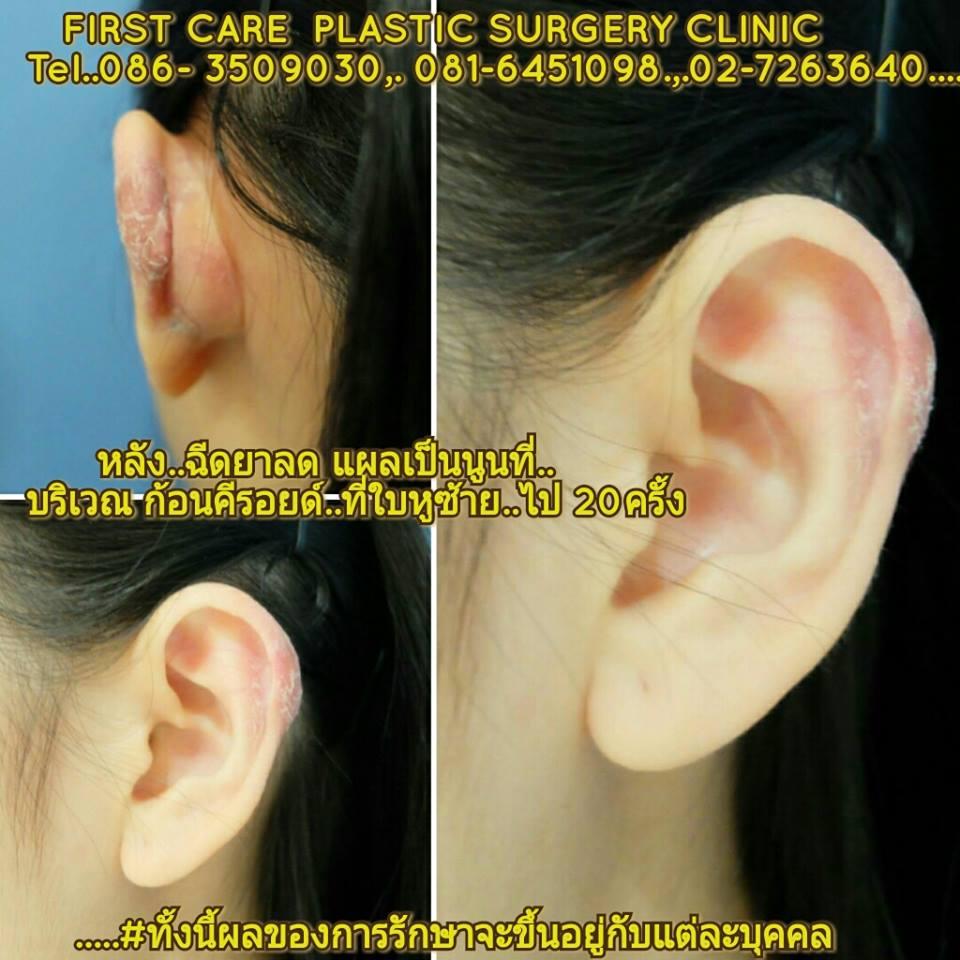 ear keroide (1).jpg