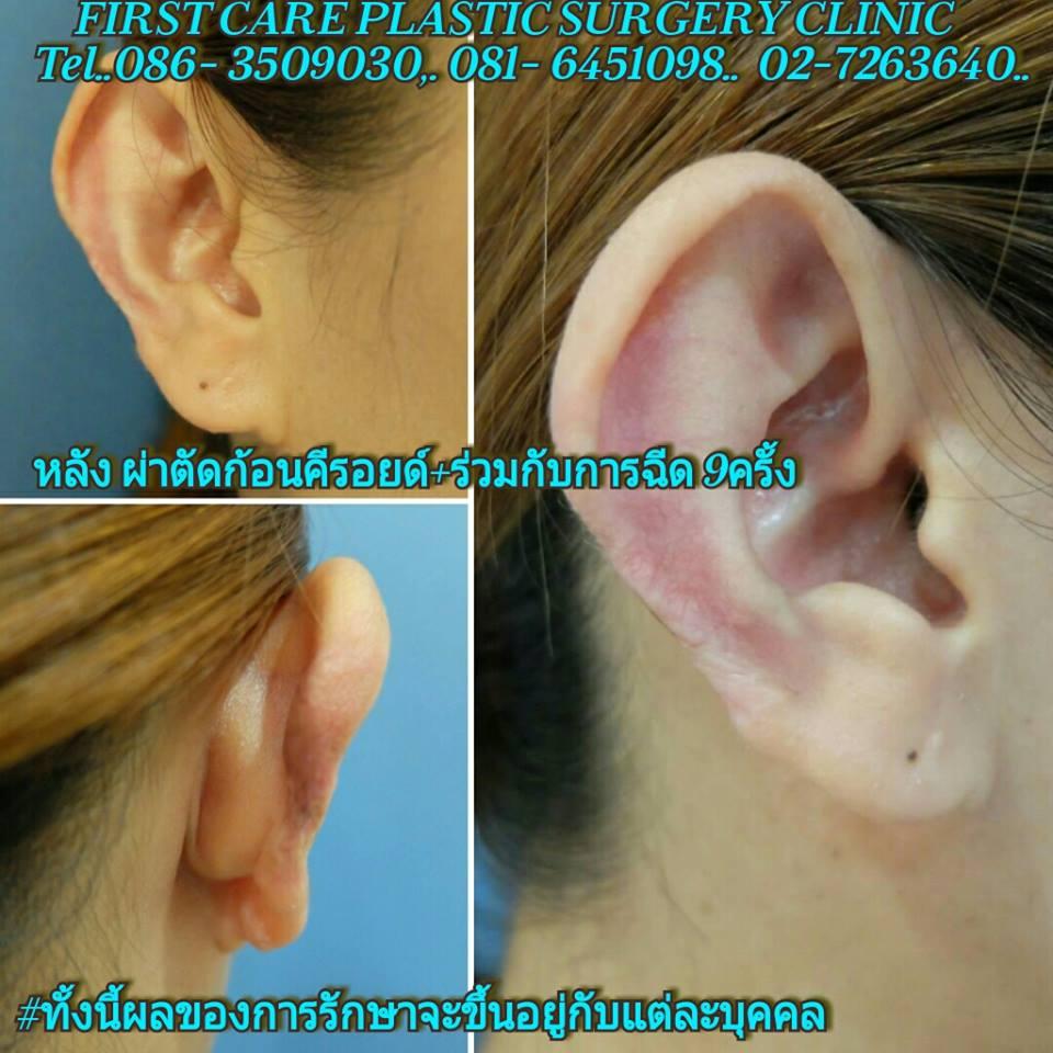 ear-keroid-3